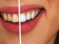 Les dents blanches débutent avec bébé